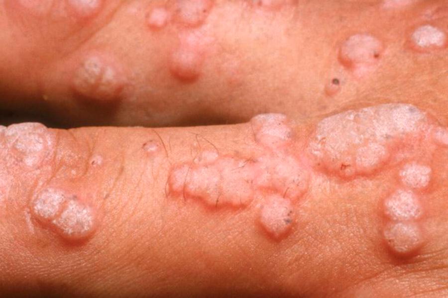 Papiloma que es sintomas
